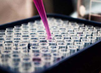 Na co zwrócić uwagę przed wykonaniem badań laboratoryjnych?
